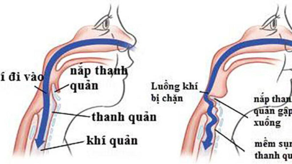 Hô hấp có vai trò quan trọng như thế nào với cơ thể sống?