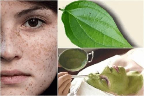 Nguyên nhân gây nám da? Tại sao nám da thường xảy ra ở phụ nữ?