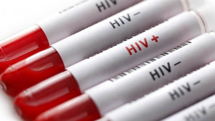 Xét nghiệm HIV ở đâu?